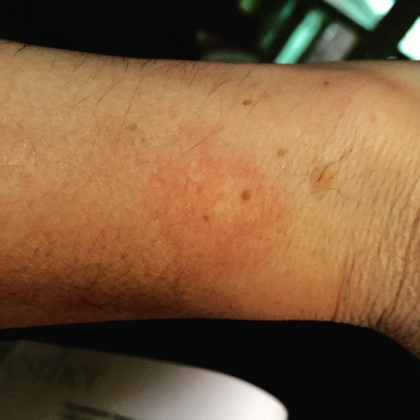 AppleWatch_Rash_First_Derm