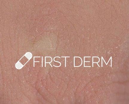 First-Derm-Dry-Skin