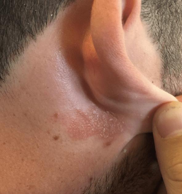 Traveling Rash Eczema Before