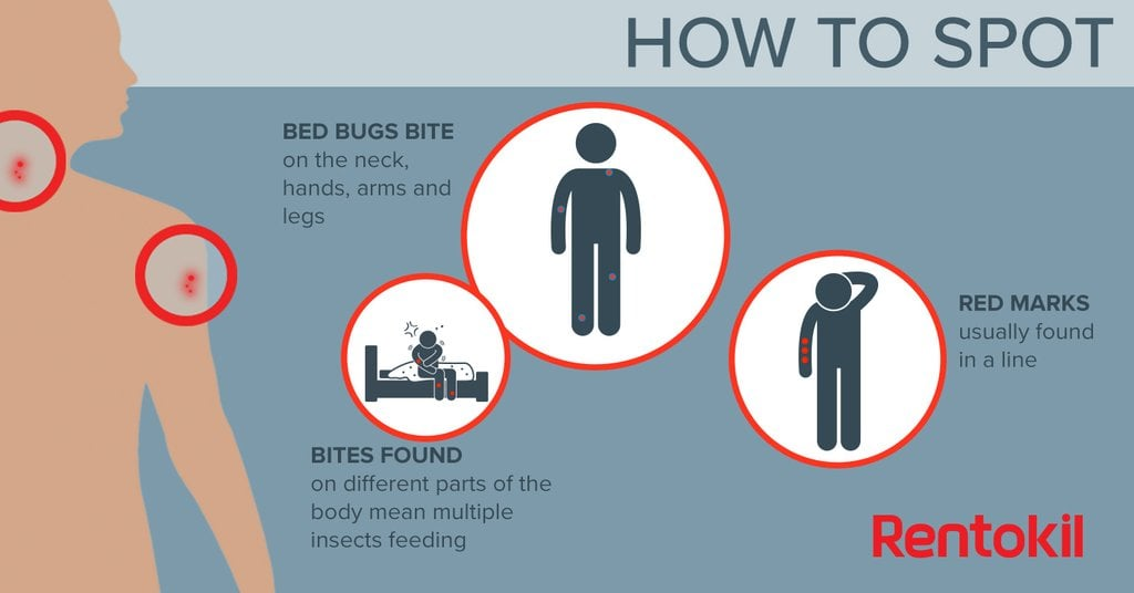 Bed Bug Bites Airbnb