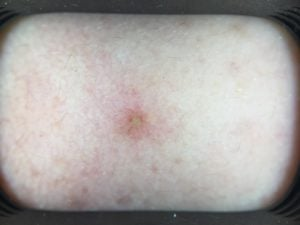 pimple with white head