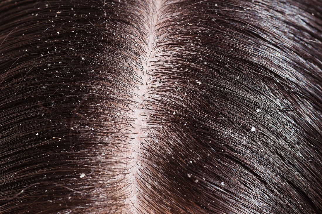 How to get rid of dandruff with henna hair packs or hair masks pictures