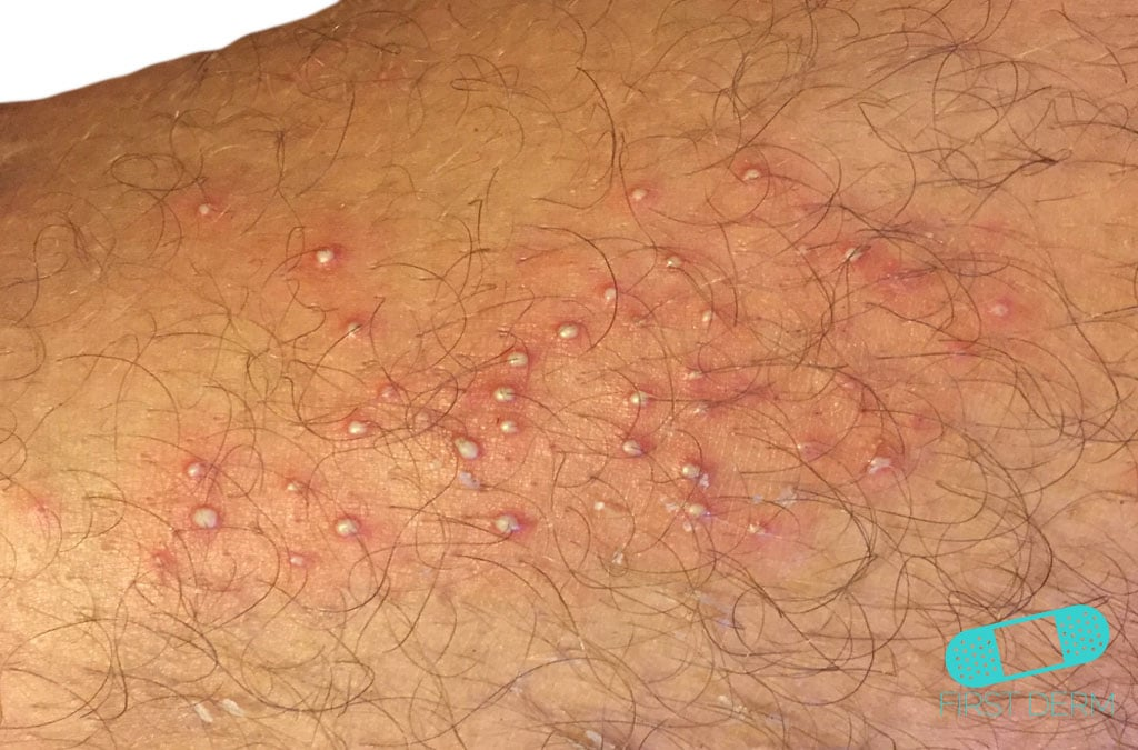 Itchy Red Bumps Amp Common Causes First Derm Blog