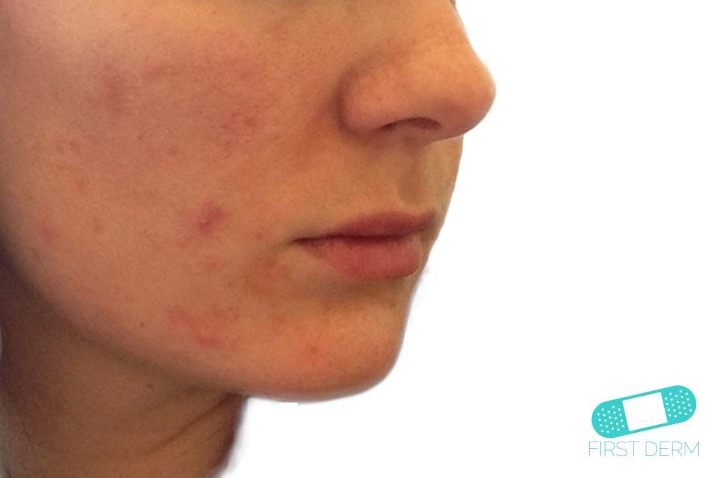 Protuberancias rojas acne