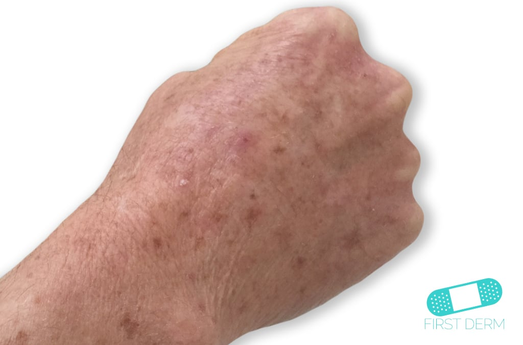 Itchy Bumps Red & Common Causes hand actinic-keratosis