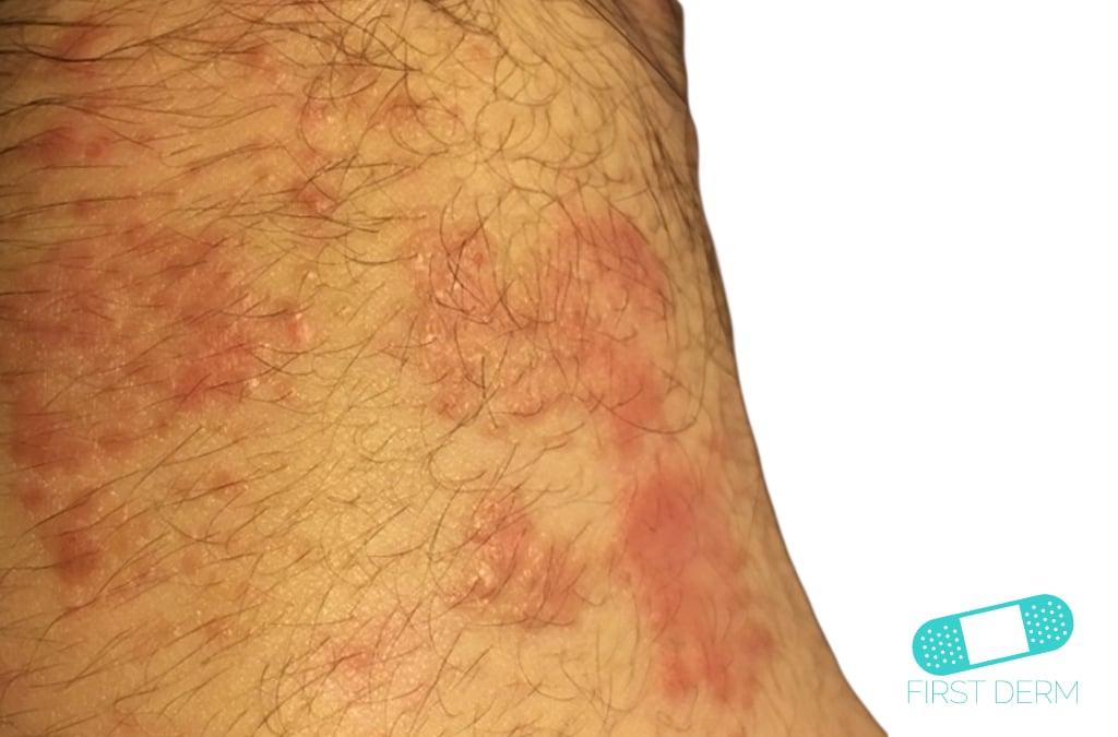 Protuberancias rojas eczema
