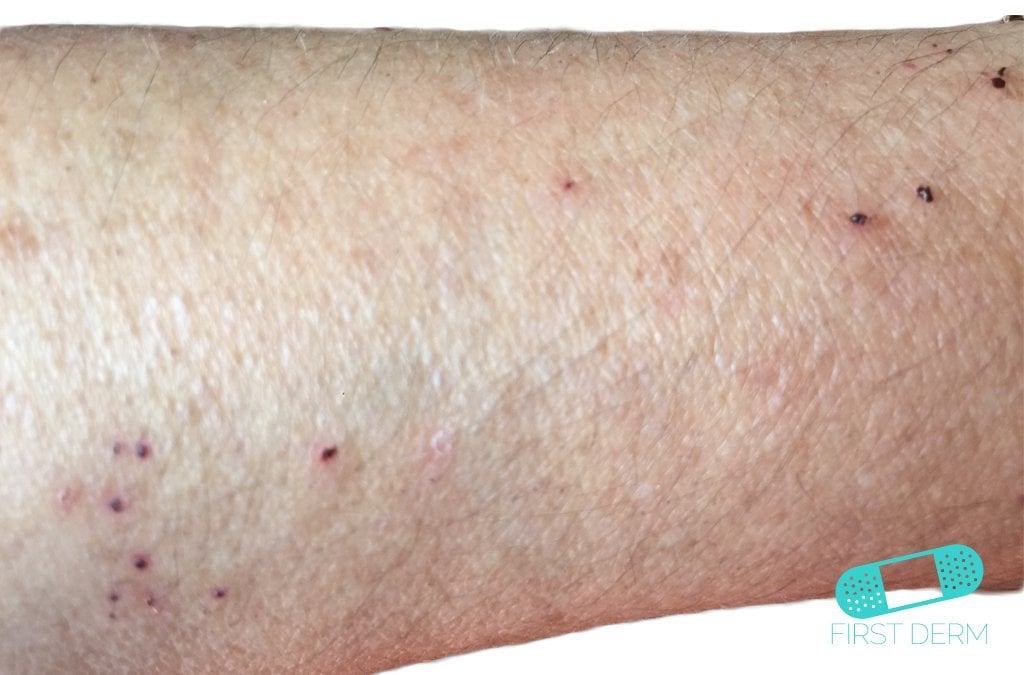 Itchy Red Bumps & Common Causes - First Derm Blog