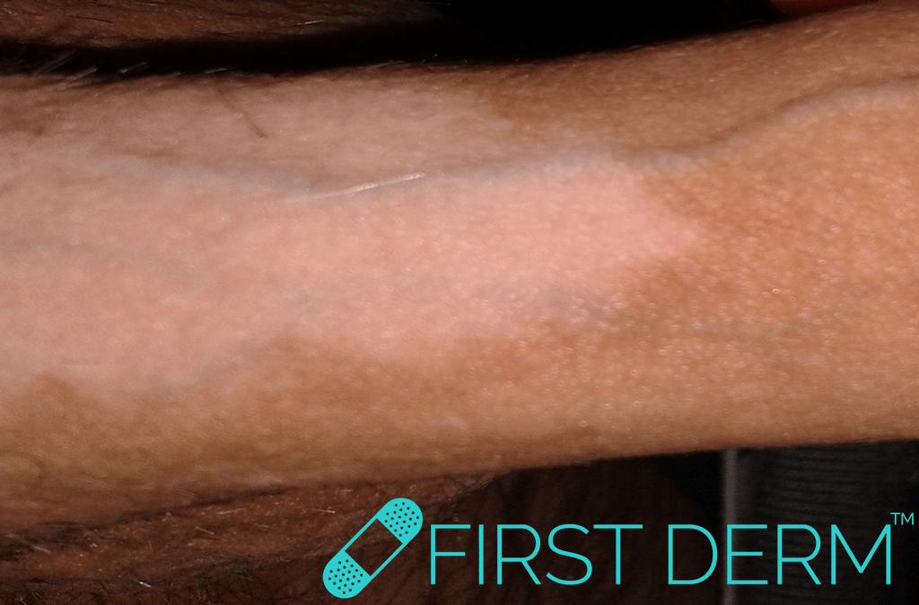 Sex rash Genital Vitiligo penis ICD-10-L80