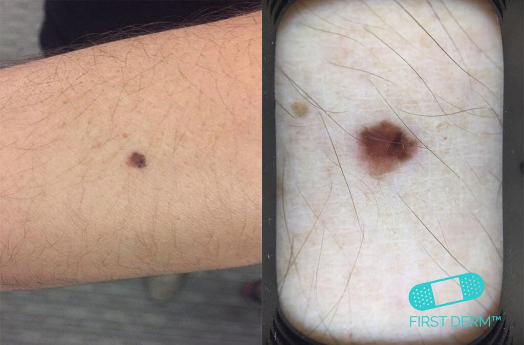 saved life entrepreneur Malignant Melanoma smartphone dermoscopy arm ICD 10 C43.9