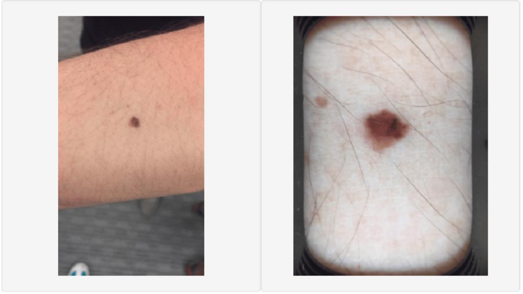 hudcancer malignt melanom på start-up grundare