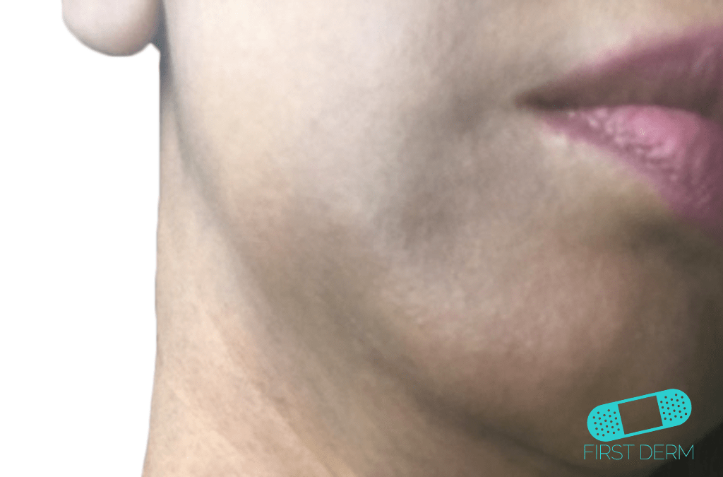 Post-Inflammatory Hyperpigmentation treatment differentiate