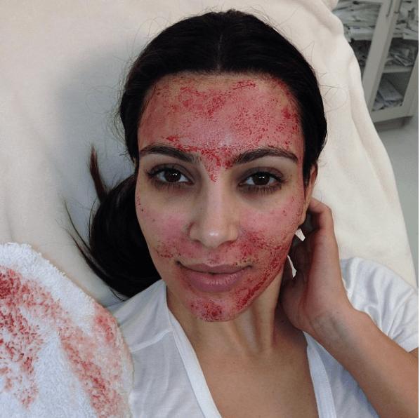 Simple Guide Microneedling Kim Kardashian Vampire Facial Dermarollers