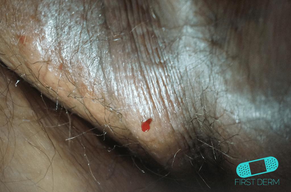 Pyogenic Granuloma abroad summer vacation travel skin rashes ICD-10-L98.0
