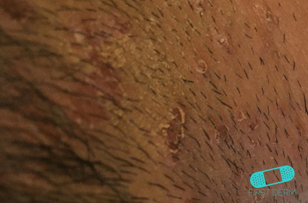 Ringworm Tinea Faicei abroad summer vacation travel skin rashes ICD-10-B35.9