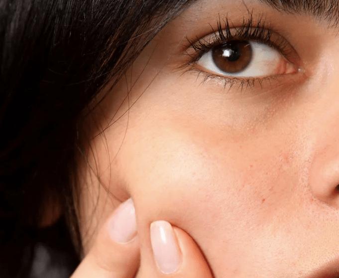 Summer Skin Care Post-Inflammatory Erythema