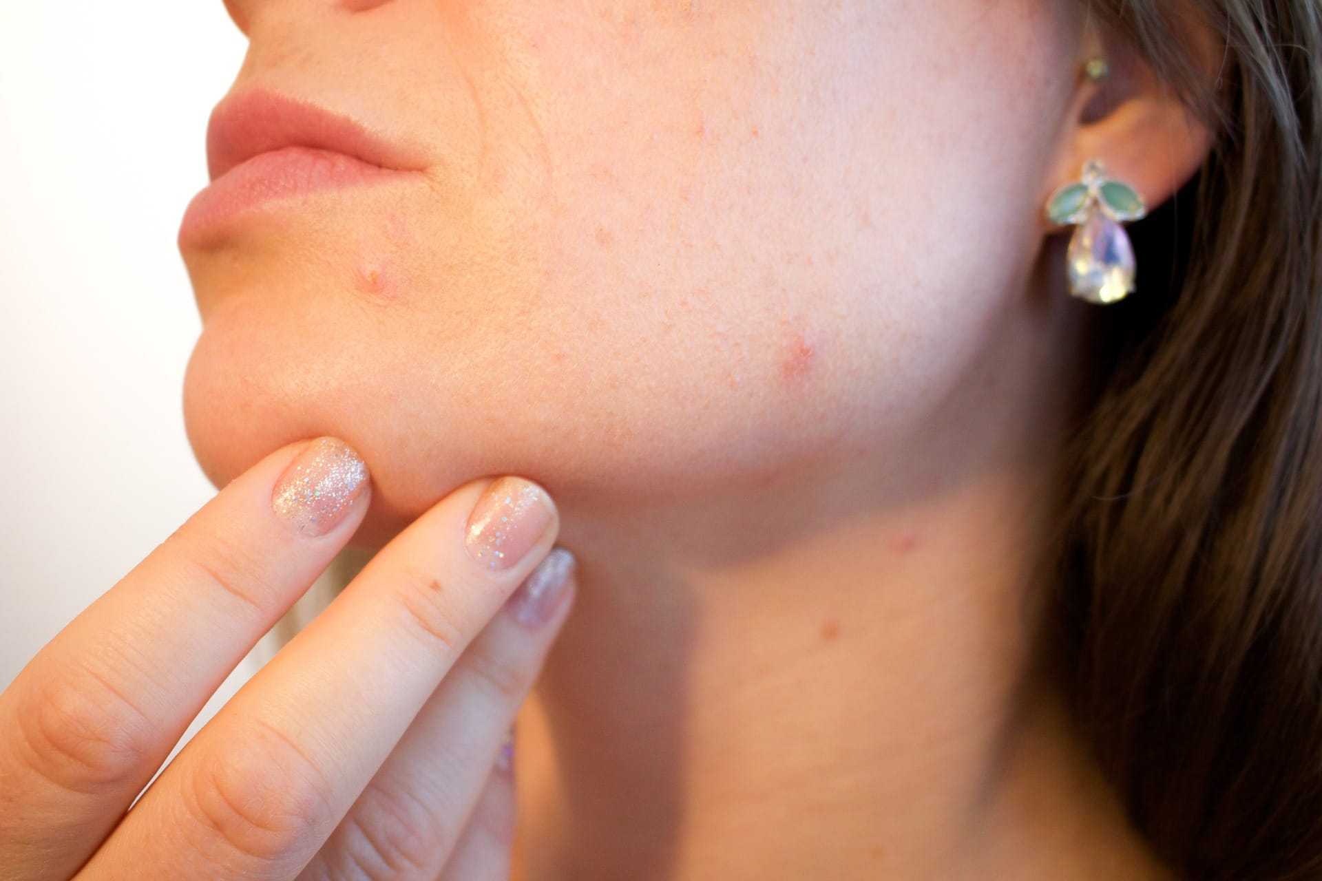 Summer Skin Care: The Do's and Don'ts of Treating Post-Inflammatory Erythema PIE acne pimple