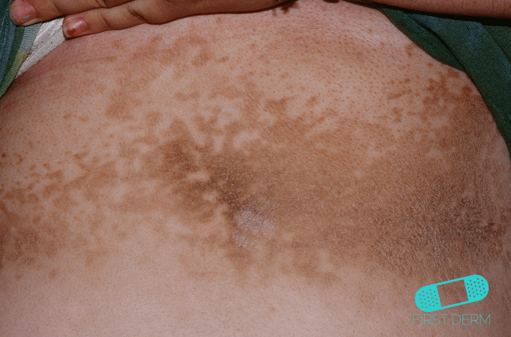 Skin of color people of colour chest Confluent of Reticulated Papillomatosis Gougerot-Carteaud Syndrome ICD-10-L66.4