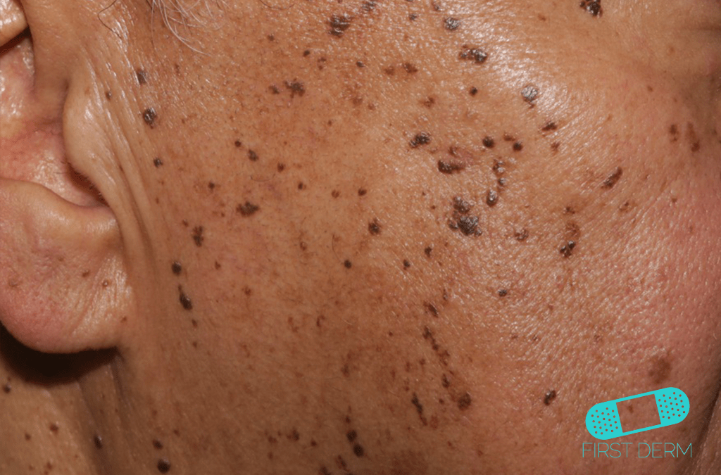 Skin of color people of colour face Dermatosis Papulosa Nigra ICD-10-L81.7