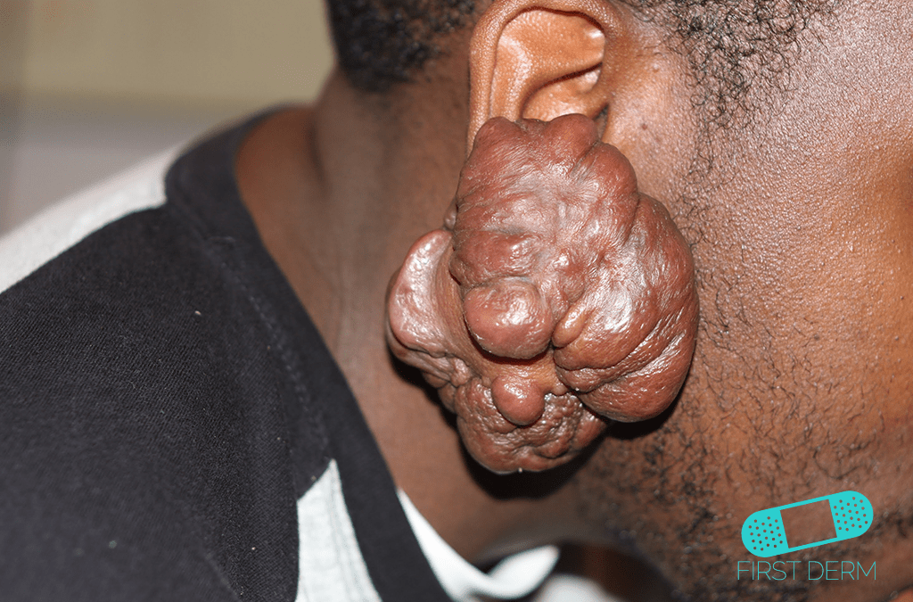 Skin of color people of colour ear Keloid ICD-10-L73