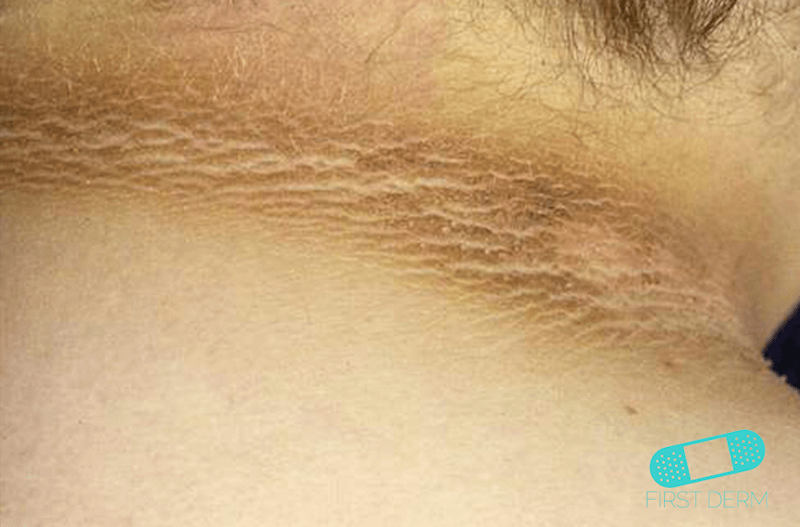 Skin of color people of colour First Derm Acanthosis Nigricans ICD-10-L83