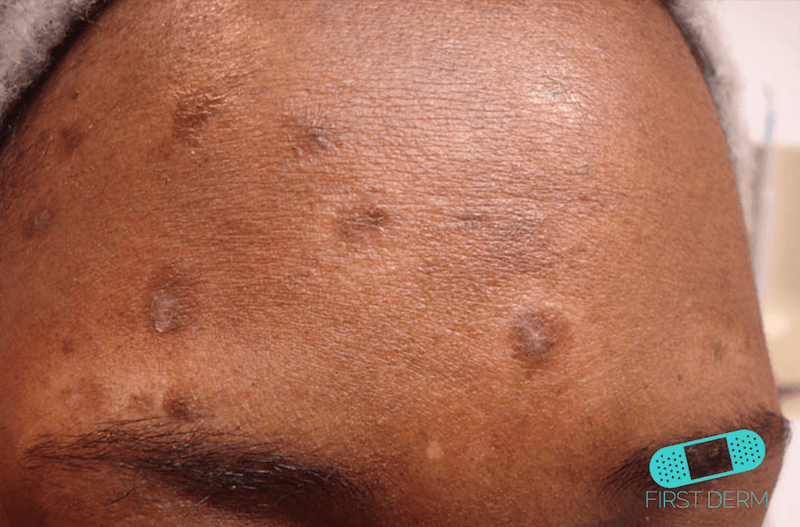 Skin of color people of colour First Derm Postinflammatory Hyperpigmentation ICD-10-L81.0