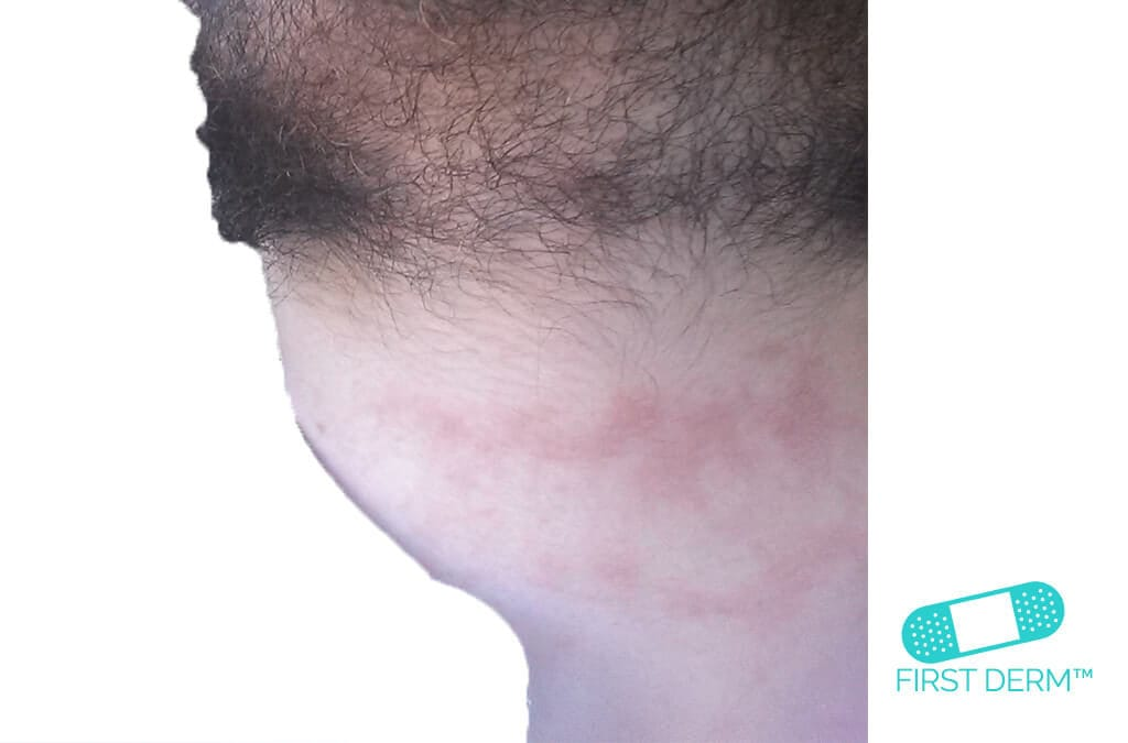 Eczema_Neck_ICD_10_L30.9