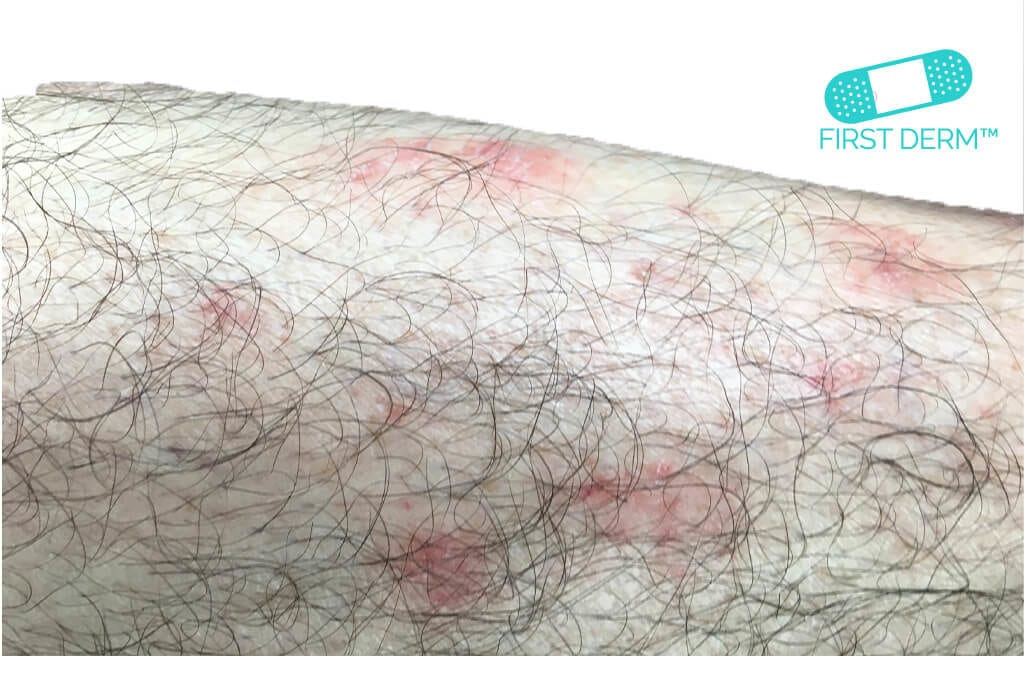 itchy rash Psoriasis_on leg_ICD_10_L40.9