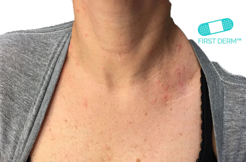 Urticaria itchy rash on breast ICD 10 L50.9