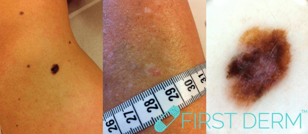 prickar på kroppen hudcancer hudtumör ICD 10 44.9