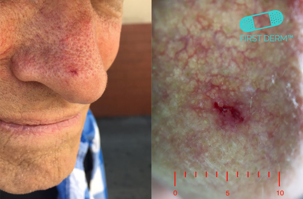 Dermoscopy Basal Cells Carcinoma (BCC) on nose spotcancer ICD 10 C44.9