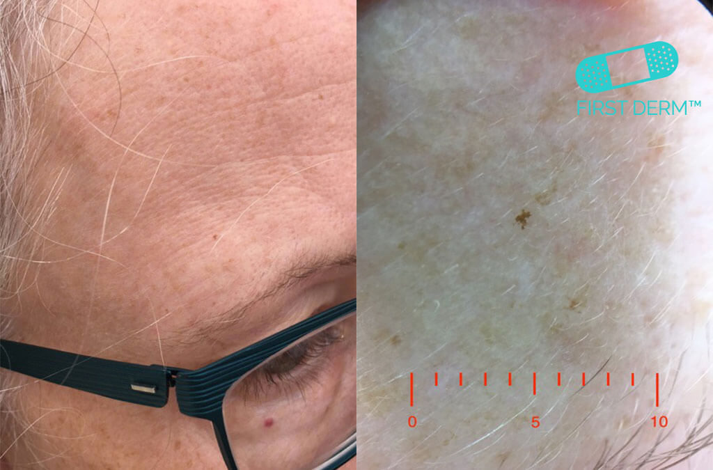 Dermoscopy Lentigo solaris sun spot on the head spotcancer ICD 10 L81.4