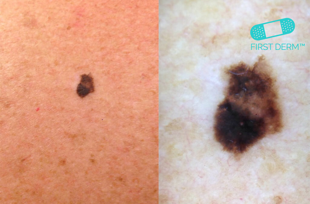 Dermoscopy malignant Melanoma on arm spotcancer ICD 10 L43.9