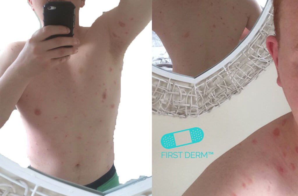 Itchy rash pictures Pityriasis Rosea arm groin back trunk ICD 10 L42.9