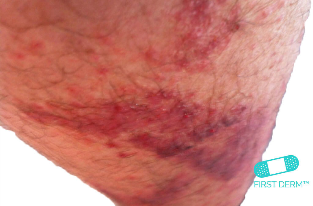 Red spots on skin CONTACT DERMATITIS CAUSED BY PLANTS on leg ICD 10 L25.5