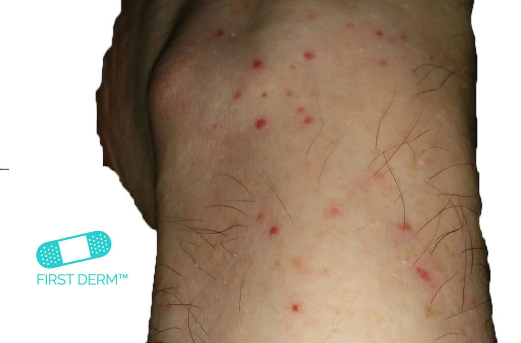 Red spots on skin LEUKOCYTOCLASTIC VASCULITIS on one leg ICD 10 L95.9